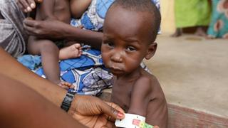 Hungerndes Kind in Nigeria | Bildquelle: AP